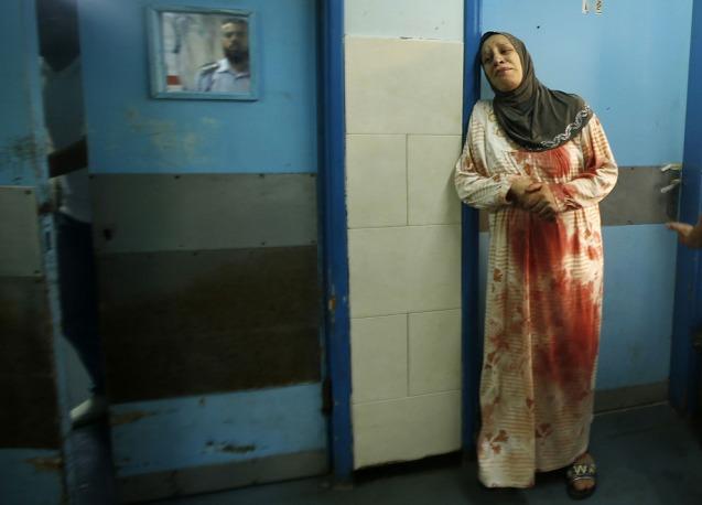 Hospital de Shifa, em Gaza: Uma palestiniana com a roupa mancaha pelo sangue dos seus familiares feridos num ataque a 20 de Julho 2014. © Mohammed Salem | Reuters