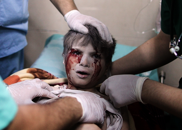 Um rapaz palestiniano ferido num bombardeamento israelita no bairro de Shujaiya – onde foram mortas mais de 60 civis – recebe tratamento do hospital de Sifa, que também foi alvo de ataques. © Ali Jadallah | APA images