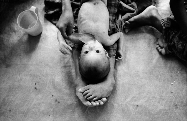 BANGLADESH. Maricha. 1/06/1992: Burmese (Rohingya) refugees. Nutrition center run by MSF. ©http://www.johnvink.com/