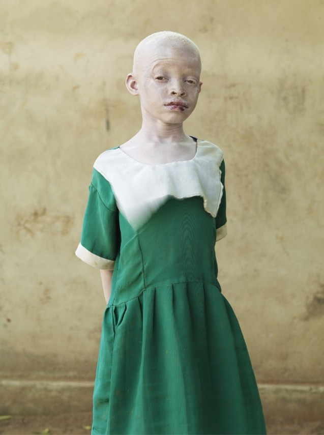 Regina Matias : 9 anos O seu rosto já evidenciava sinais de melanoma devido ao sol. A maioria das crianças albinas pobres morre antes dos 30 anos. São muitas as que sofrem de cancro de pele por não usarem protectores solares, chapéus e óculos escuros. Regina está vestida com um uniforme escolar, mas provavelmente nunca chegará a frequentar as aulas. © Cortesia de | Courtesy of Patrick Gries