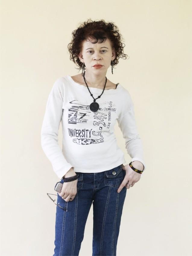 Sophia Mwhlammedi : 24 anos Já não se consegue perceber, de modo algum, se Sophia é branca ou preta, observou o fotógrafo. Mas é albina. Vive e trabalha nos escritórios da organização não governamental Under The Same Sun, em Dar-es-Salam. © Cortedia de | Courtesy of Patrick Gries